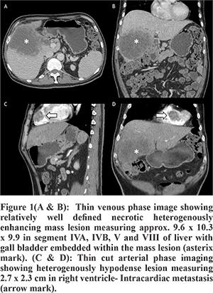 Metastatic cancer gallbladder. Metastatic cancer gallbladder - parohiaorsova.ro