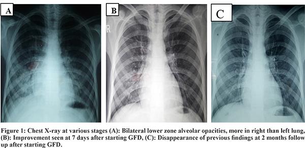 anemia x ray)